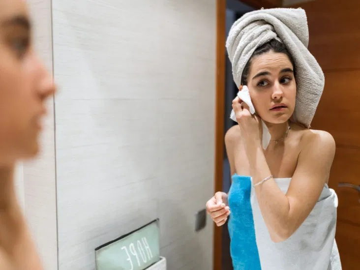 Take Care of Your Acne-Prone Skin Naturally